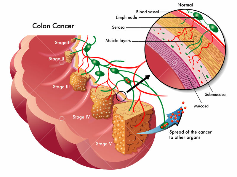 Colon Cancer Graphic Vector Stock By Pixlr